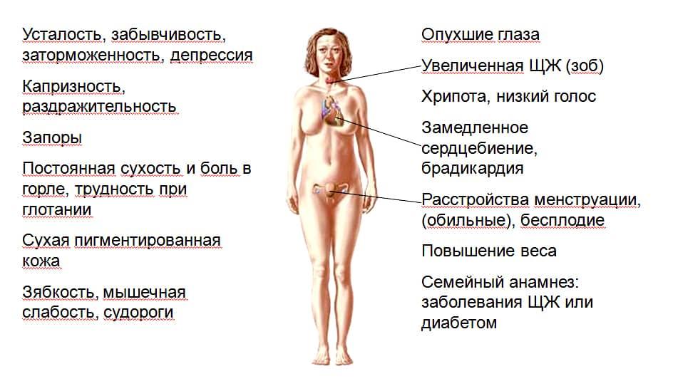 Картинки по запросу гипотиреоз симптомы