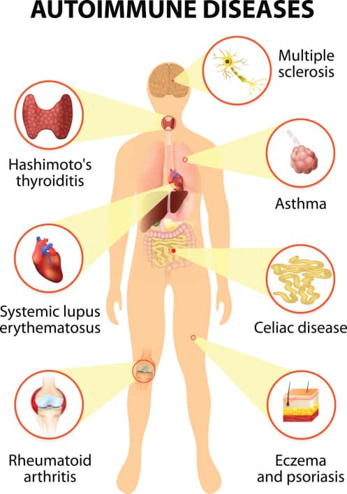 Hashimoto ' s, disease - Symptoms, Causes, Testing and Treatments