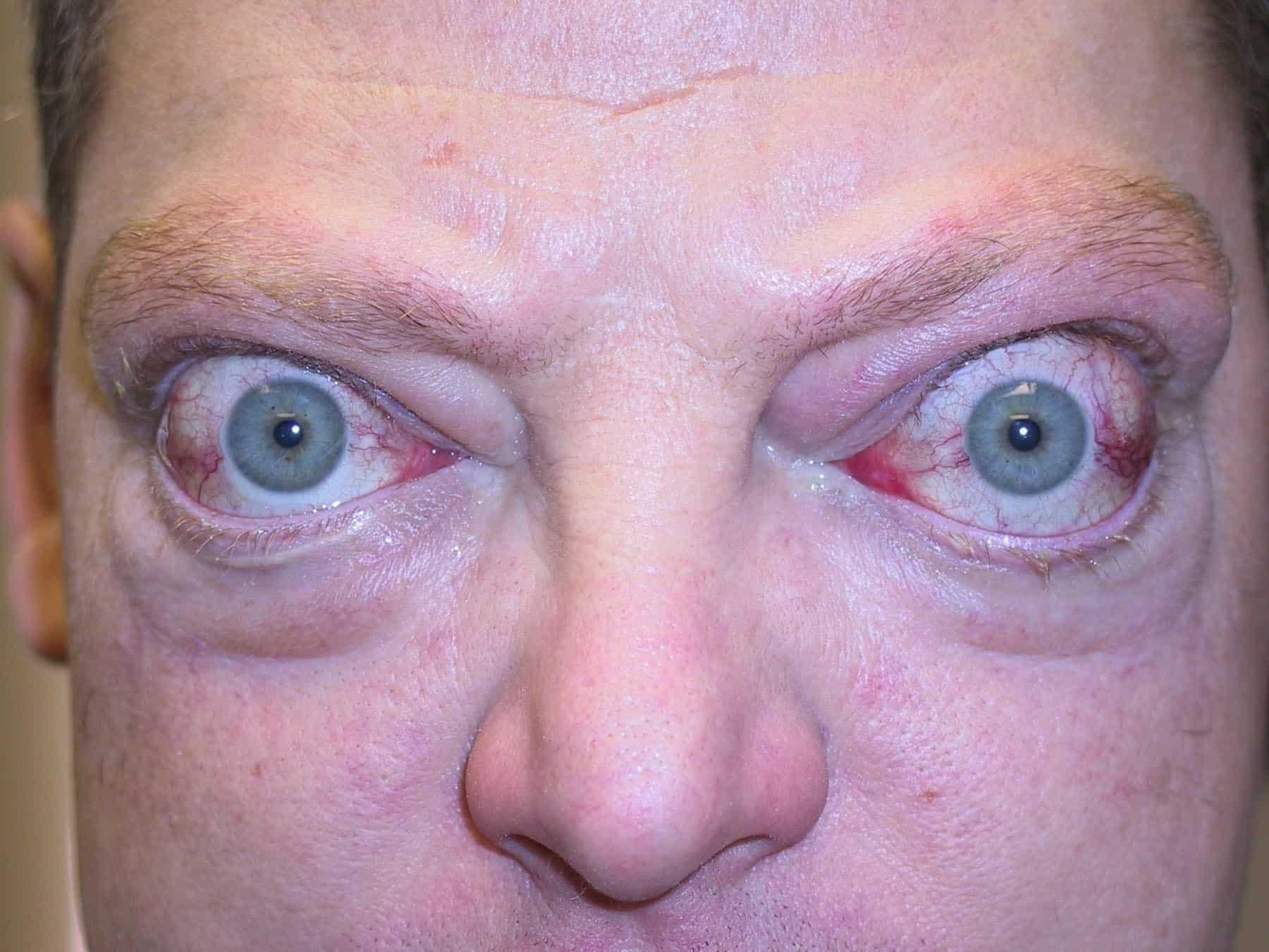 Офтальмопатия у пациента с диффузным токсическим зобом