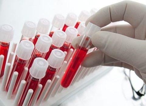 Чтобы получить точные результаты, нужно знать, как сдавать кровь на гормоны щитовидки правильно.