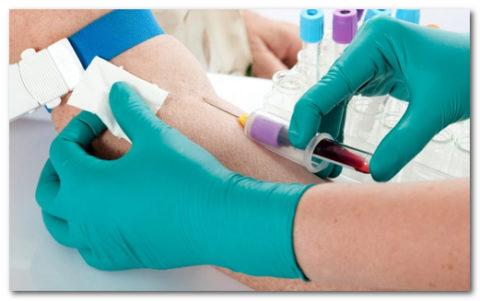 Для установления концентрации т3-гормона человеку проводят внутривенный забор крови.