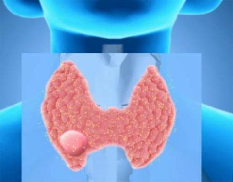 Образования на щитовидной железе встречаются у 10% населения.