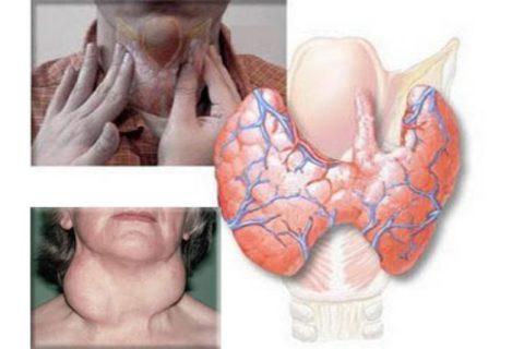 Аутоиммунный тиреотоксикоз щитовидной железы – это грозное заболевание, которое, при неправильном лечении, может привести к летальному исходу.