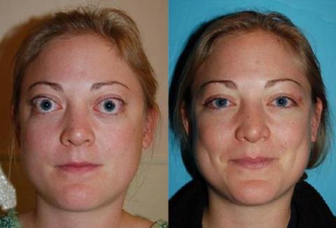 Диффузный токсический зоб (на фото пациентка до и после лечения) вызывает резкое повышение уровня свободного Т4