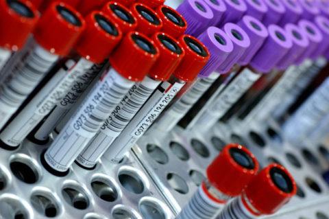 Исследование состава крови в лабораторных условиях.