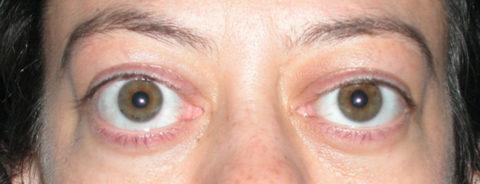 Клиническое проявление тиреотоксической офтальмопатии