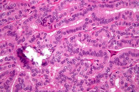 Микропрепарат папиллярной карциномы: ядра клеток деформированы, нарушена железистая структура органа, наблюдаются сосочковые выросты