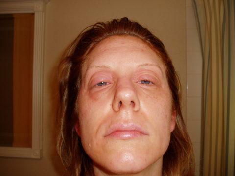 На фото – пациентка с зобом Хашимото в стадии гипотиреоза