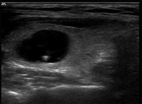 На фото – УЗ-картина узлового образования в щитовидной железы