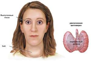 На фото основные видимые симптомы тиреотоксикоза