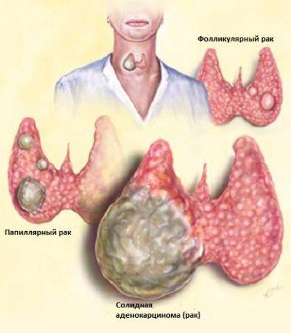 Некоторые разновидности рака щитовидной железы