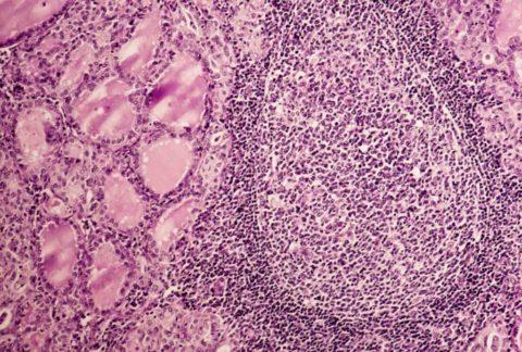 Один или несколько указанных выше факторов запускают аутоиммунные процессы, которые приводят к замещению нормальных клеток щитовидной железы соединительной тканью (на фото справа)