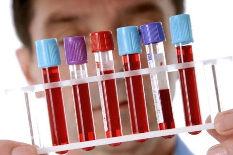 Основная причина повышения уровня ТТГ в крови – заболевания, сопровождающиеся гипотиреозом
