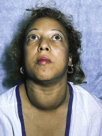 Пациентка с признаками гипертиреоза: Базедовой болезнью