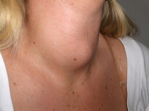 При сильно выраженном зобе обычно применяют хирургическое лечение