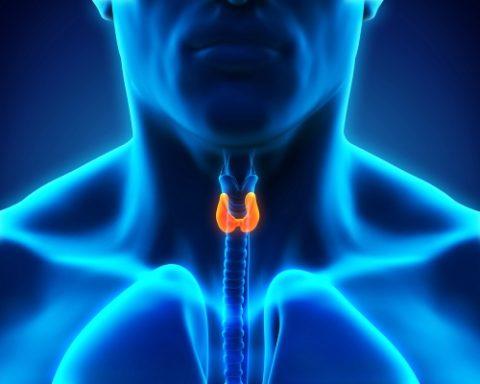 Признаки нехватки йода в организме женщины проявляются постепенно и часто их связывают с гинекологическими заболеваниями