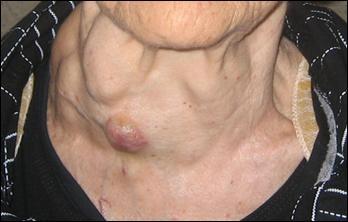 Раковая опухоль паращитовидной железы