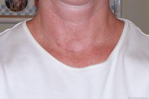 Щитовидная железа уязвима у женщин в большей степени, чем у мужчин.