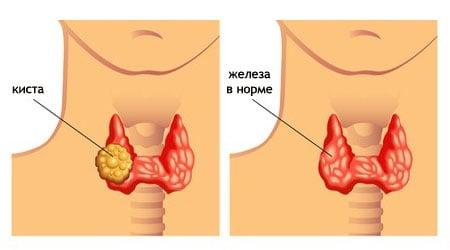 Схематическое изображение кисты в ткани щитовидной железы