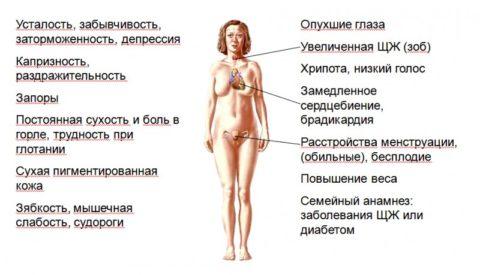 Симптомы нарушения щитовидной железы у женщин при гипотиреозе