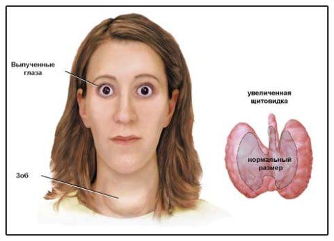 Симптомы нарушения щитовидной железы у женщин: диффузный токсический зоб