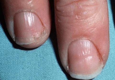 Сухие ломкие ногти.