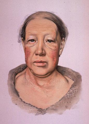 Типичный вид пациентки при гипотиреозе