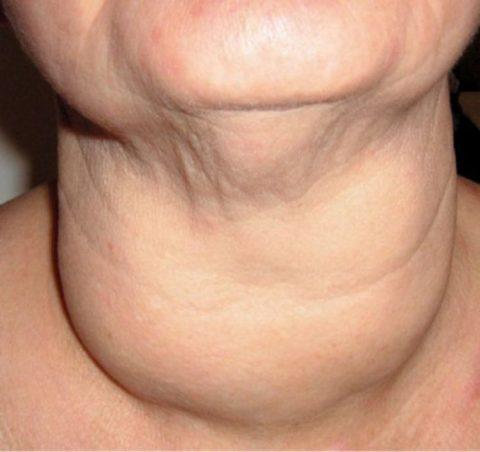 Увеличенная щитовидная железа давит на расположенные рядом трахею и пищевод, вызывая проблемы с дыханием, глотанием и приемом пищи