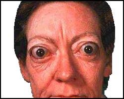 Внешний вид больного гипертиреозом в фазе тиреотоксикоза