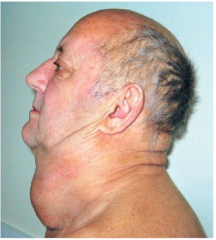 Внешний вид больного раком щитовидной железы
