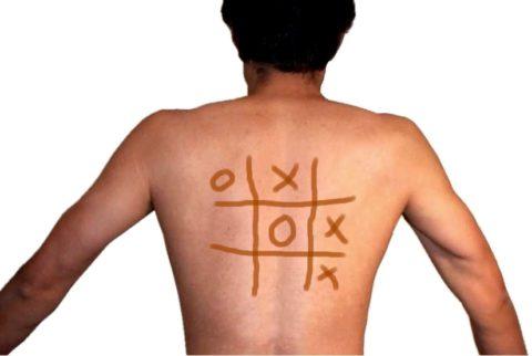 Йодовая сетка на коже – популярный метод диагностики йододефицита в домашних условиях