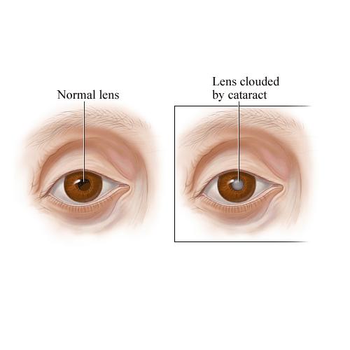Недостаток паратгормона – один из факторов развития катаракты