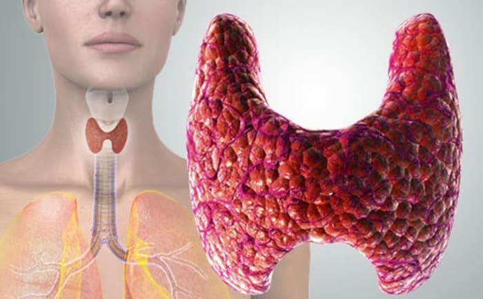 Признаки и симптомы рака щитовидной железы