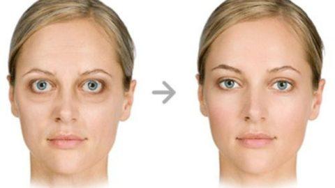 Адекватная терапия позволяет добиться регрессии глазных симптомов.