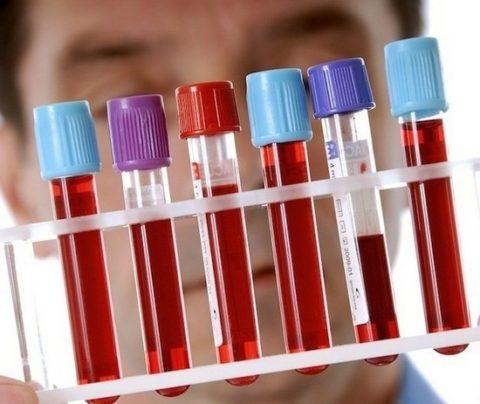 Если ттг повышен – причины у женщин необходимо выяснять у эндокринолога