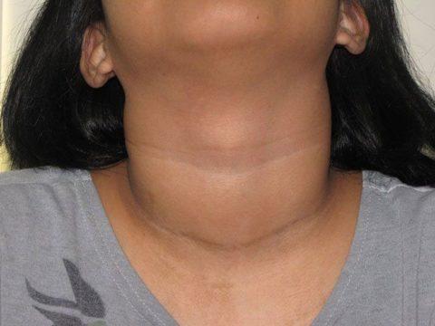 Если вы не знаете, что делать – душит щитовидка, лучше всего обратится к эндокринологу