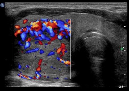 Изменения, характерные для рака на изображении, полученном при ультразвуковом исследовании