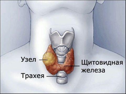 Лечение узлов щитовидной железы у женщин проходит под контролем специалиста