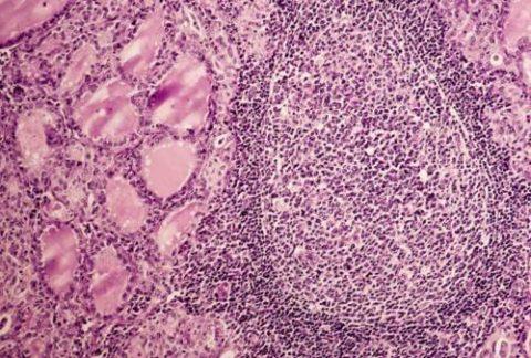 Микрофотография ткани щитовидной железы с аутоиммунным тиреоидитом.