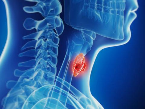 Образование в щитовидной железе требует внимания специалиста.