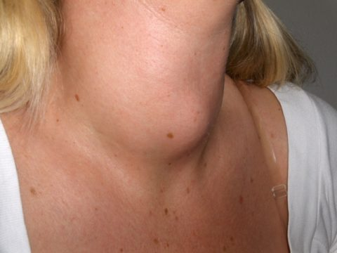 Опухоль щитовидки опасная, но вполне излечимая болезнь.