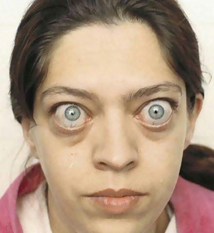Пациентка, страдающая Базедовой болезнью