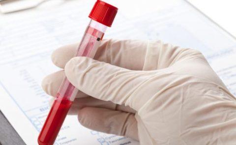 Анализ крови на ТТГ – тиреотропный гормон: норма у мужчин