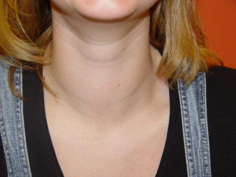 При зобе увеличение щитовидки можно заметить невооруженным глазом