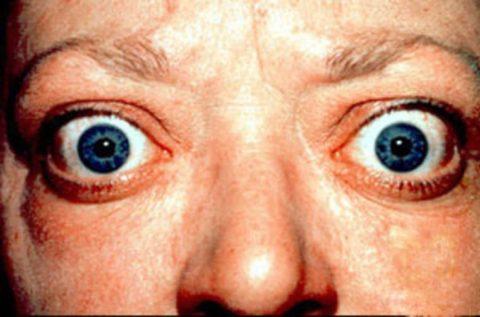 «Пучеглазие» при гиперфункции щитовидки