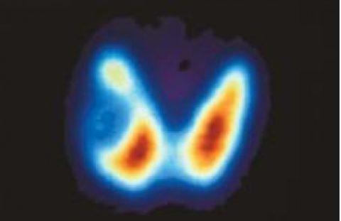 Снимок щитовидной железы.