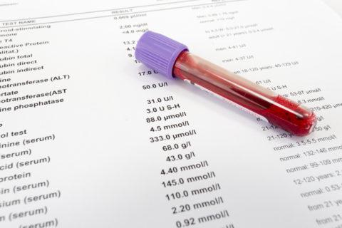Средняя цена обследования щитовидки (анализы на свободные Т3, Т4 и ТТГ) –1800 р.