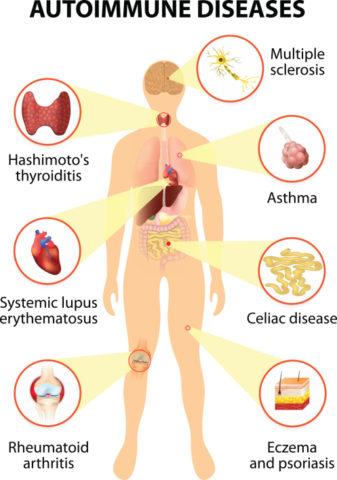 Тиреоидит Хашимото часто сочетается с другими аутоиммунными заболеваниями.
