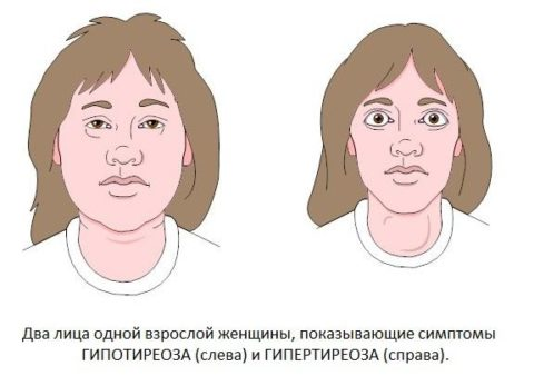 ттг повышенный у женщин может протекать с симптомами как гипотиреоза, так и тиреотоксикоза