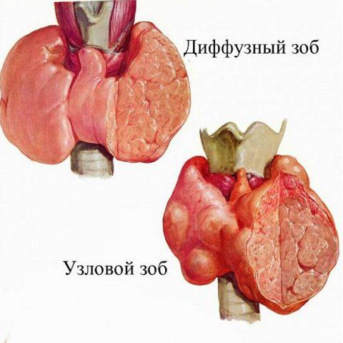 Самые характерные симптомы узлов щитовидной железы у женщин